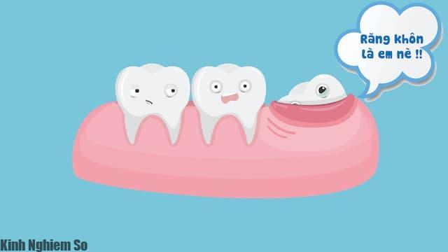 Mọc răng khôn