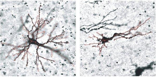 Não hình thành nếp nhăn